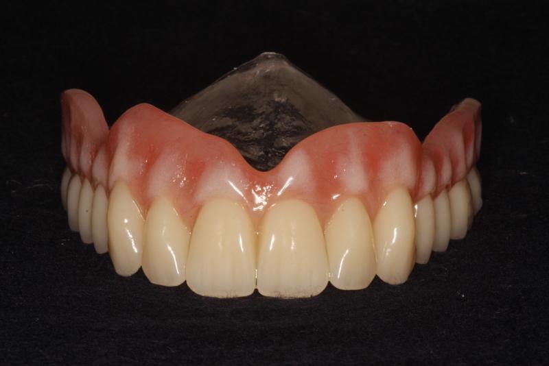 Private Dentures 2