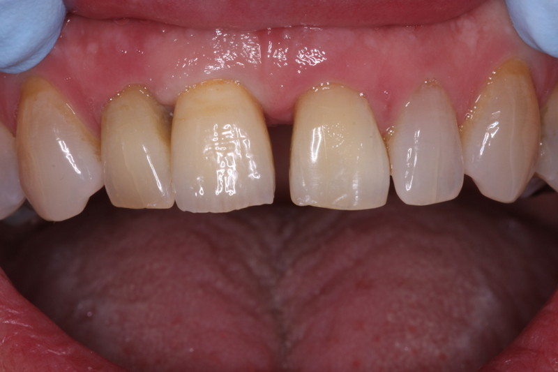 Implant Crown 1
